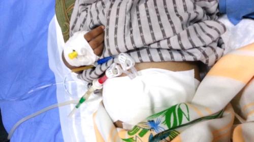 لأول مرة بحضرموت اطباء مراكز الكلى بحضرموت الوادي يجرون عملية غسيل بريتوني لطفل عمره سنتين